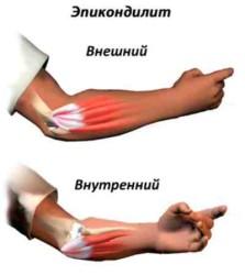 длительное монотонное воздействие на область локтевого сустава может привести к развитию болезни