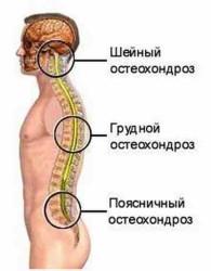 чаще всего болезни подвержены шейный и поясничный отделы