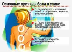 Боли в спине: почему они возникают и как их лечить