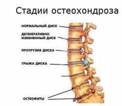 Лфк при остеохондрозе позвоночника