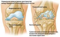 Изменения в суставах при заболевании