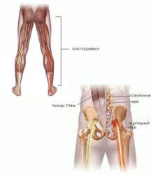 Воспаление седалищного нерва