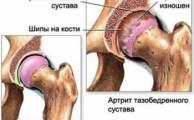 Артрит тазобедренного сустава (коксит): причины, симптомы и лечение