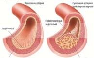 Болезнь Кенига: вероятные причины, симптомы и лечение