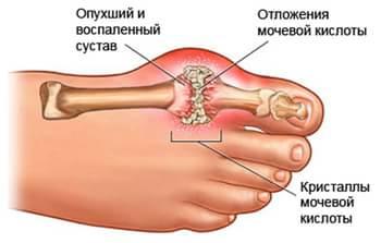 Аллопуринол Инструкция Цена В России - фото 11