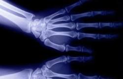 Кисть на рентгене