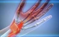 Лучезапястный сустав: строение и анатомия