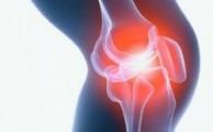 Где лечить артроз коленного сустава*