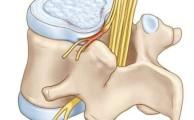 Протрузия в межпозвонковых дисках: причины, симптомы и лечение