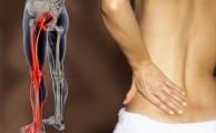 Как лечится ишиас: препараты, процедуры, гимнастика, народная медицина