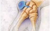 Гигрома лучезапястного сустава: причины, симптомы и лечение