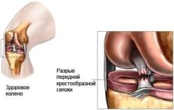 Здоровое колено и поврежденное