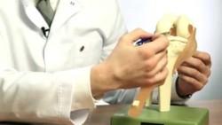 Степени разрывы связок колена
