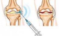 Отзывы о гиалуроновой кислоте при лечении болезней суставов