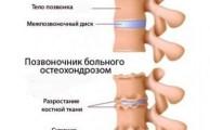 Поясничный остеохондроз: симптомы болезни и методы лечения