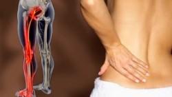 Болит нога от спины