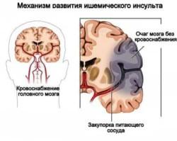 Так развивается инсульт головного мозга