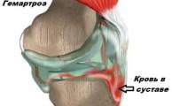 Гемартроз коленного сустава: симптомы, первая помощь и лечение