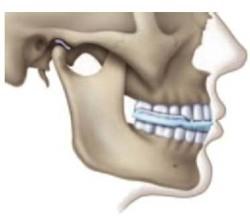 Строение черепа человека может различаться