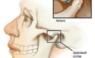 Височно-нижнечелюстной сустав: его строение, функции и болезни
