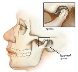 Разрушенный сустав в челюстной области