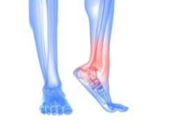 Болит нога в голеностопе