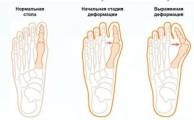 Поперечное плоскостопие: симптомы и методы лечения