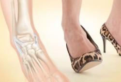Подворачивание ноги в лодыжке может вызвать перелом
