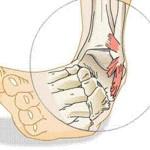 Перелом лодыжки: симптомы, первая помощь, лечение
