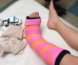 Нога зафиксирована в месте перелома