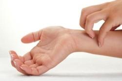 Чешется рука после пластыря