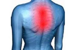 воспаление в грудном отделе позвоночника
