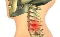 Методы лечения межпозвонковой грыжи шейного отдела