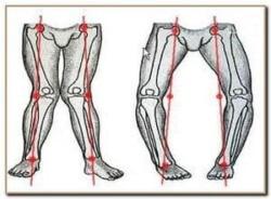 искривление костей ног