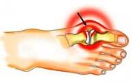 Шишки на ногах: причины появления, симптомы и методы лечения