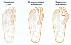 искривление большого пальца стопы
