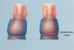 коррекция стопы стелькой