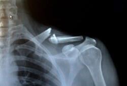 перелом показывает рентген