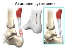 травма пяточного сухожилия