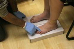 диагностика плоскостопия по отпечатку