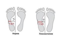 отпечатки при плоскостопии