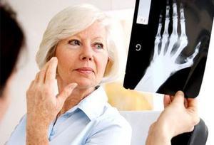 рентген при остеоартрозе