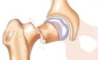 Перелом шейки бедра: причины, симптомы, осложнения и методы лечения