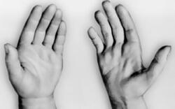 две руки: здоровая и деформированная
