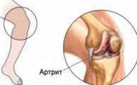 Ювенильный ревматоидный артрит: причины, симптомы и лечение