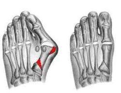 устранение шишки на ноге