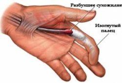 припухлость в районе указательного пальца