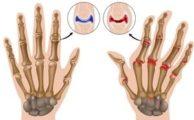 Полиостеоартроз суставов: причины, симптомы и лечение