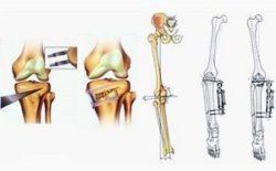 перелом кости для ее выравнивания