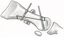 Z-образное направление искусственного перелома